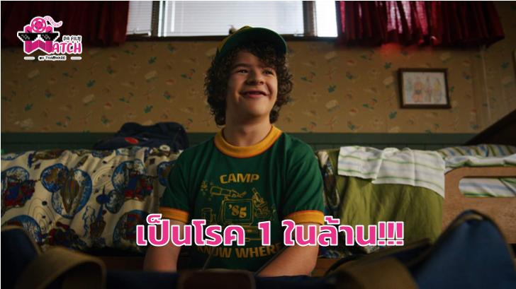เหตุผลที่ Dustin ใน Stranger Things ฟันหลอ!?